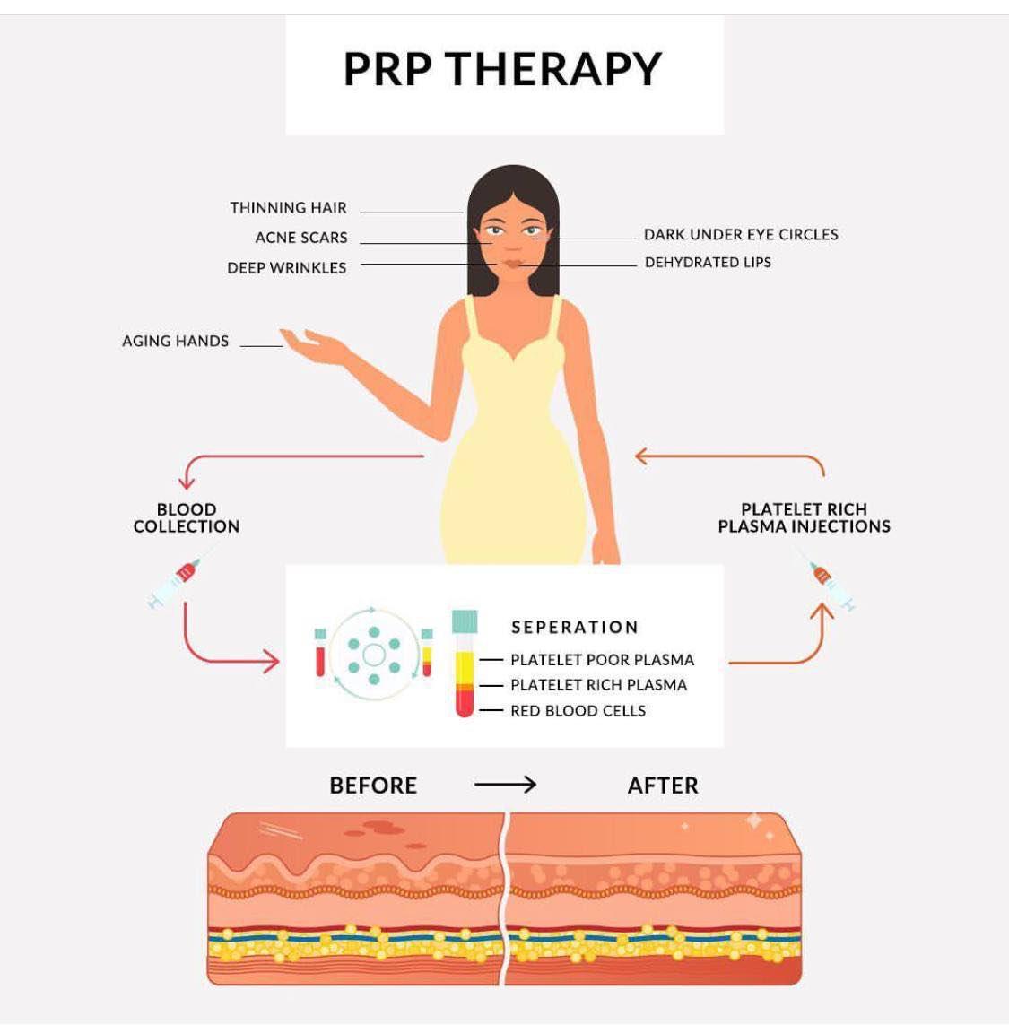 регенеративна медицина преди и след